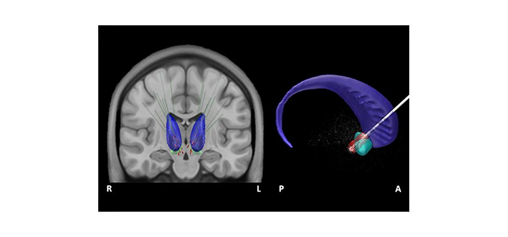 Logran modular los síntomas en pacientes con TOC mediante técnicas de Estimulación Cerebral Profunda